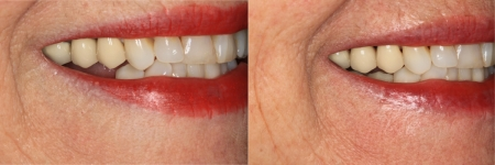 patient-12-1-ceramic-dental-implants-before-after