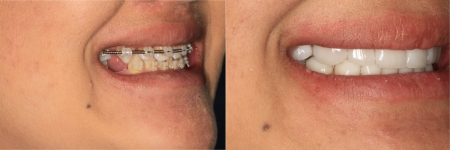 patient-13-1-ceramic-dental-implants-before-after