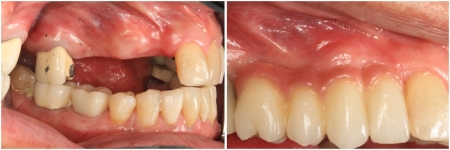patient-14-2-ceramic-dental-implants-before-after