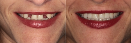 patient-3-1-ceramic-dental-implants-before-after