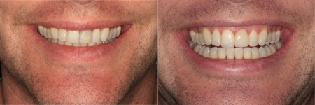 patient-5-1-ceramic-dental-implants-before-after