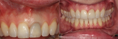 patient-5-2-ceramic-dental-implants-before-after