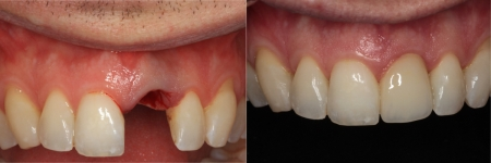 patient-5-3-ceramic-dental-implants-before-after