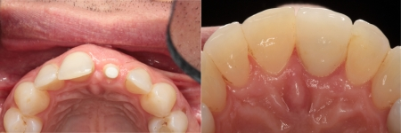 patient-5-4-ceramic-dental-implants-before-after