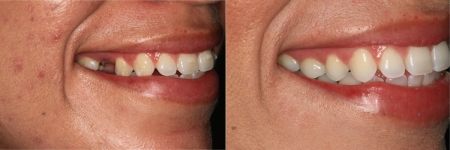 patient-6-1-ceramic-dental-implants-before-after
