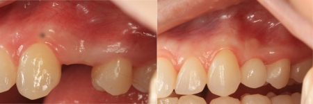 patient-7-1-ceramic-dental-implants-before-after