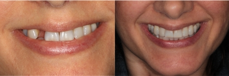 patient-8-1-ceramic-dental-implants-before-after