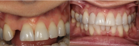 patient-8-2-ceramic-dental-implants-before-after