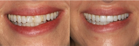 patient-9-1-ceramic-dental-implants-before-after