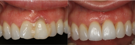 patient-9-2-ceramic-dental-implants-before-after