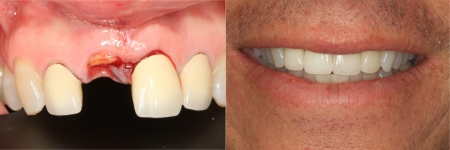 patient-1-1-titanium-dental-implants-before-after