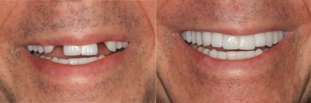 patient-2-1-titanium-dental-implants-before-after
