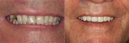 patient-3-1-titanium-dental-implants-before-after