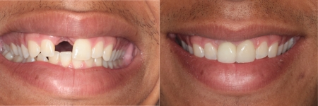 patient-4-1-titanium-dental-implants-before-after