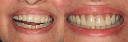 patient-5-1-titanium-dental-implants-before-after
